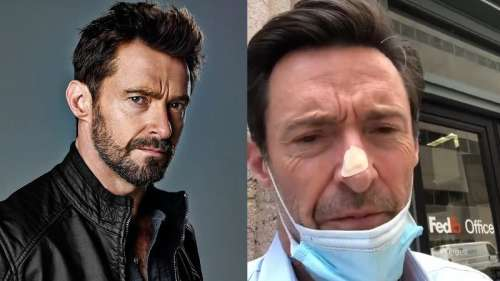 Hugh Jackman gets skin biopsy on his nose for a possible cancer scare, shares video