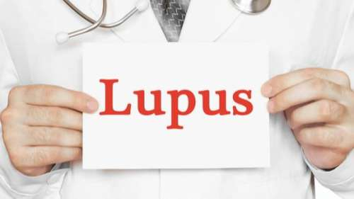 What is Lupus and how does it affect the Covid-19 prognosis?