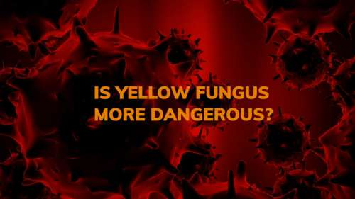 Is Yellow Fungus more dangerous: causes, symptoms and treatment