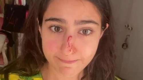 Sara Ali Khan की नाक हुई चोटिल, वीडियो शेयर कर कहा - सॉरी अम्मा-अब्बा नाक काट दी मैंने