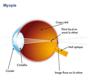 Explication de la myopie