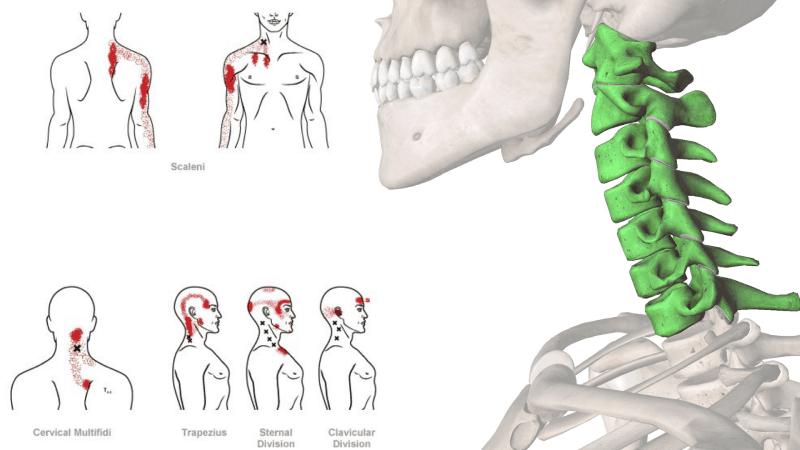 Osteopata-Recomendado-Madrid-Ekonatura-Dolor-Cuello-Hombros.png
