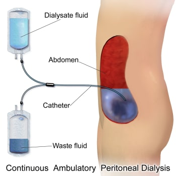 PD is a more affordable form of dialysis because it does not require a machine or specialized dialysis facility for treatment. (Image courtesy of Wikipedia.)