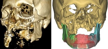 A patient's damaged jaw and the corrective implants built using CAD/CAM techniques. (Image courtesy of Plastic and Reconstructive Surgery.)