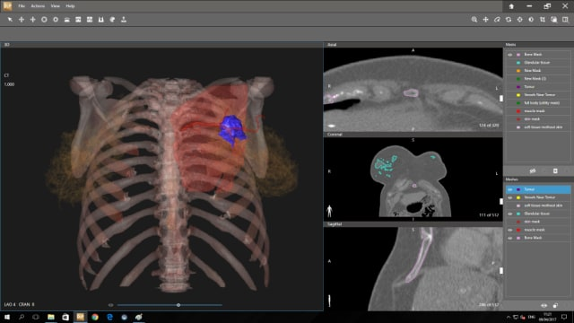 3D Systems D2P software helps diagnose patients. (Image courtesy 3D Systems.)