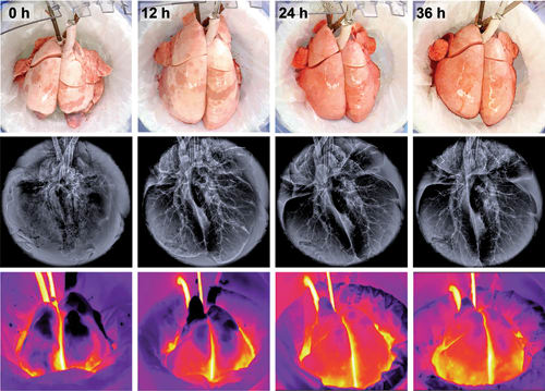 Photographic, radiographic and thermographic images of injured lungs recovered with extracorporeal cross-circulation. Lungs subjected to this novel therapy demonstrated normal function: perfusion, ventilation and gas exchange - after being outside of the body for 56 hours, and could be effectively treated with drugs and therapeutic stem cells. Lung recovery over 36 hours is shown. (Image courtesy of Gordana Vunjak-Novakovic.)