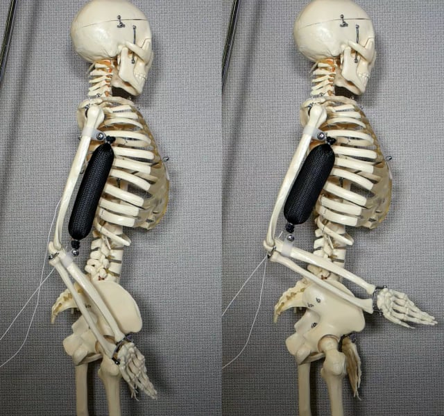 The artificial muscle in use as a bicep lifts a skeleton's arm to a 90 degree position. (Image courtesy of Aslan Miriyev/Columbia Engineering.)