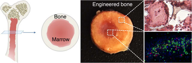 Left: Illustration of long bone structure. Center: Image of engineered bone with marrow. Right: High magnification images of bone tissue (top) and marrow cells (bottom). (Image courtesy of Varghese Lab/UC San Diego.)