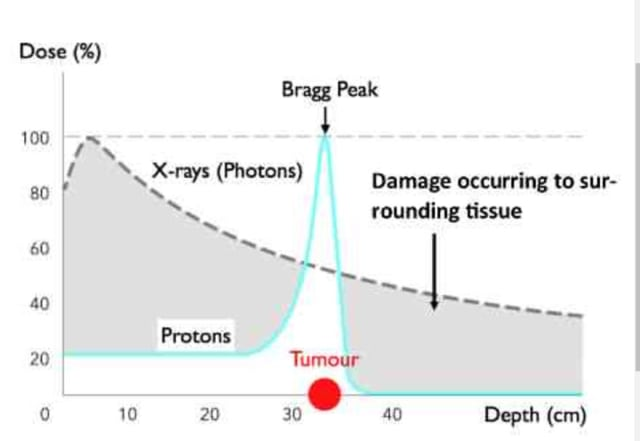 Figure 2- Bragg Peak effect shows the destructive energy of a proton concentrates at the tumor. (Picture courtesy of Advanced Oncotherapy).