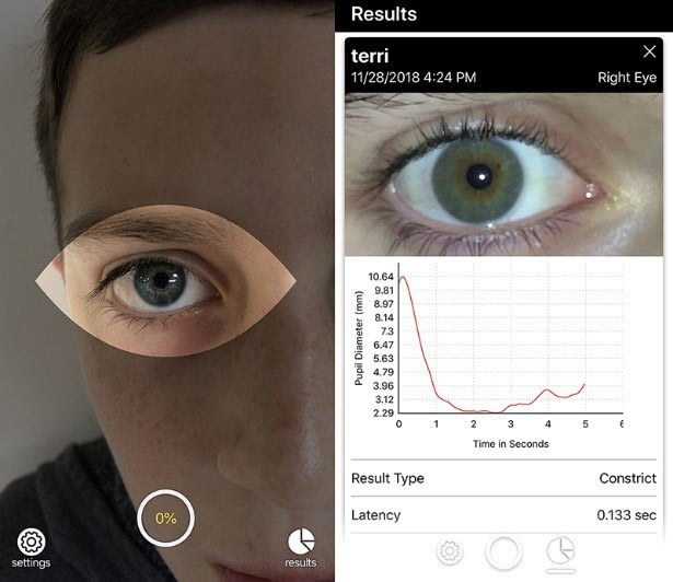 Brightlamp Inc., a Purdue University-affiliated startup, has created an application called Reflex that allows a smartphone to record data that that can be sent to a trainer or medical professional who can determine if that person has sustained any neurological disturbance, including concussion. Basically, the user holds the camera up to an eye, taps the screen and a light flashes to initiate a response from the pupil. (Image courtesy of Purdue.)