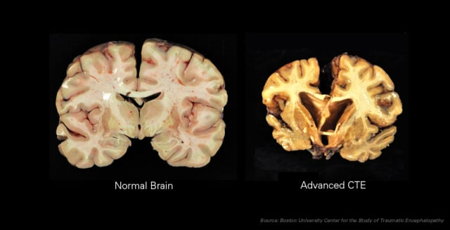 Chronic traumatic encephalopathy (CTE) is a degenerative disease found in people who have suffered repeated blows to the head. (Image courtesy of Wikipedia.)