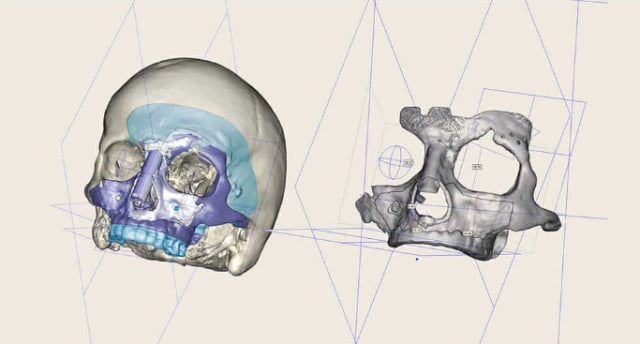 Figure 1.This skull was scanned, and the implant was designed in Autodesk Within Medical. (Image courtesy of Autodesk.)