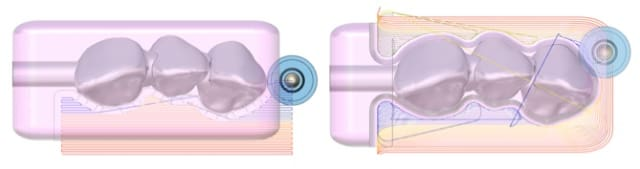 A parallel constant offset roughing toolpath (left) versusan adaptiveroughing toolpath (right), which is used for grinding out inlays, crowns, bridges and veneer components. (Image courtesy of ModuleWorks.)