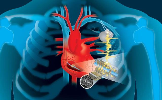 The cardiac energy harvesting device. (Image courtesy of Dartmouth Engineering.)