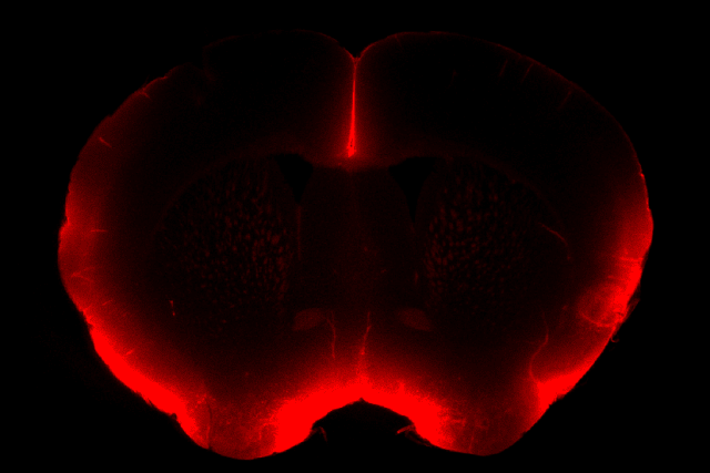 The fluorescent red in this mouse brain slice image shows increased cerebral spinal fluid penetration after vagus nerve stimulation. (Image courtesy of University of Wisconsin-Madison.)