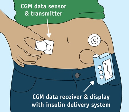 Blood-based Continuous Glucose Monitoring. (Image courtesy of NIH.)