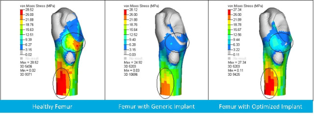 Figure 3. von Mises plots showing stress shielding of a human femur. (Image courtesy of Altair.)