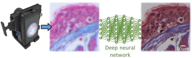 An illustration showing how the technology enhances images. (Image courtesy of Ozcan Research Group/UCLA.)