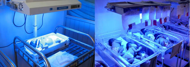 Intended use of a phototherapy device with a baby in Northern Vietnam (left) versus actual use in a hospital in a busy urban hospital in the Philippines (right). (Image courtesy of Design That Matters.)