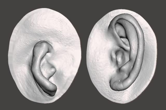 3D scan of microtia and human ear. (Image courtesy of CGTrader.)