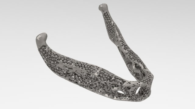 A model of a jaw implant, made lightweight using generative design. (Image courtesy of solidThinking.)