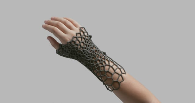 As 3D printing prices drop, custom goods, like this splint 3D printed with the Fuse 1, will become more prevalent. (Image courtesy of Formlabs.)