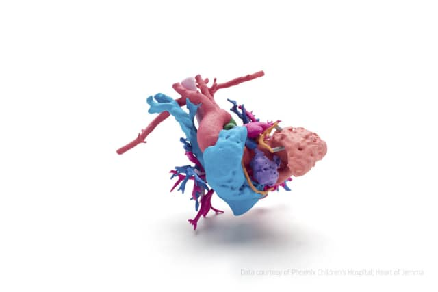 A full-color model of the heart of a young girl named Jemma, who has a complex heart defect; the heart was printed using the new HP Jet Fusion 300/500 3D printer to help surgeons at Phoenix Children's Hospital prepare and select the best surgical path, as well as explain the surgical procedure to Jemma's family. (Data courtesy of Phoenix Children's Hospital; Heart of Jemma.)