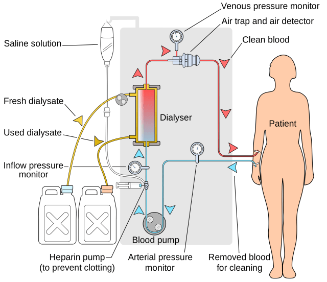 In hemodialysis, blood is pumped out of the patient into a filtering system, where the blood is cleaned and sent back into the patient's body. The process only removes about 15 percent of the body's necessary waste. (Image courtesy of Wikipedia.)