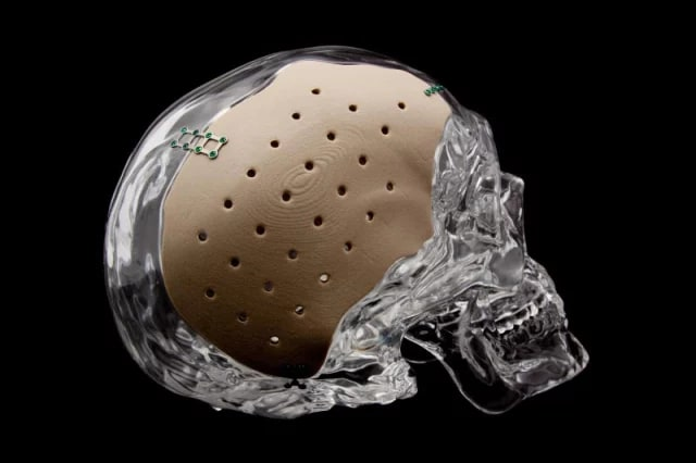 A patient-specific PEKK cranial implant 3D-printed by OPM. (Image courtesy of OPM.)