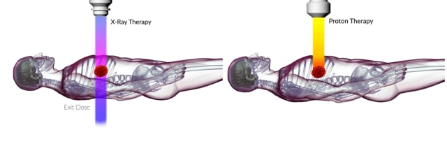 Figure 3- Proton beams only go so deep, while X-rays will go through the whole body. Picture from ProTom International.