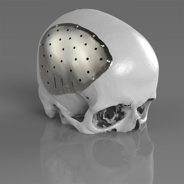 Metal printed cranial plate implant began as a scan, healed with Polygonica, with the implant geometry modeled directly as a mesh using Polygonica. (Picture courtesy of Renishaw.)