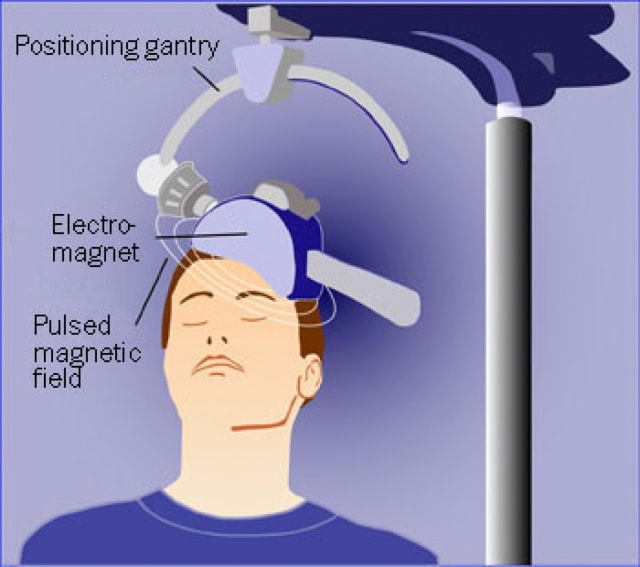 Illustration of rTMS device. (Credit: National Institute of Mental Health.)