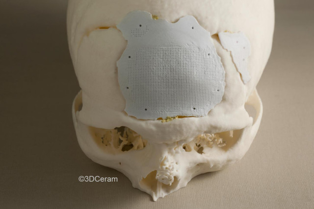 A 3D-printed cranial implant made from HA. (Image courtesy of 3DCeram.)