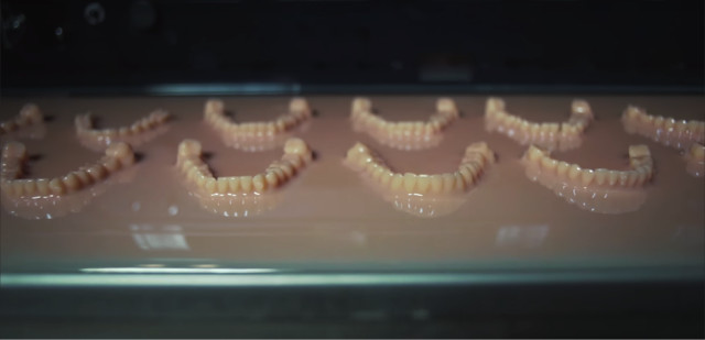 3D-printed models of patients' teeth. (Image courtesy of Biotech Dental.)