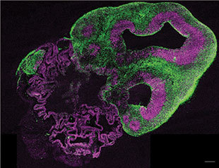 Neural stem cells (purple) and neurons (green) comprise this brain organoid developed by Madeline Lancaster. (Image courtesy of Madeline Lancaster/IMBA.)