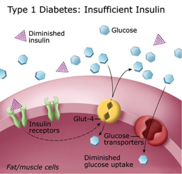 type diabetes research papers type diabetes research papers  recent diabetes research and clinical practice articles