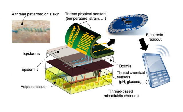 The thread collects data, such as pH and glucose levels by penetrating multiple layers of tissue and delivering the information to a wireless transmitter, which sends the diagnostics to a phone. (Image courtesy of Tufts University Nano Lab.)