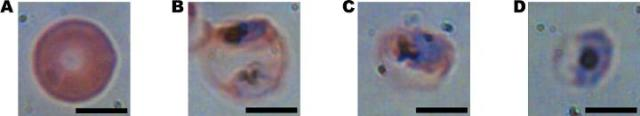 four cells as seen under a microscope in different stages of infection from a malarial parasite. The first image is uninfected, but as the parasite matures in the images from left to right, the cell deforms. (Image courtesy of Adam Wax/Duke University.)