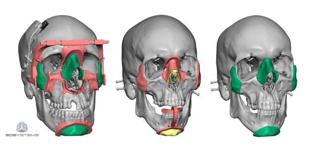 Using patient CT scans, 3D Systems engineers are able to work with doctors to create custom implants and surgical devices. (Image courtesy of 3D Systems.)