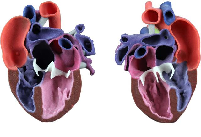 A patient-specific, full-color model can be colorcoded to indicate patient anatomy, including treatment areas, such as the white calcification of the heart above. (Image courtesy of 3D Systems.)