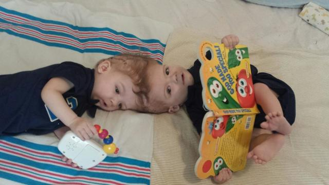 The McDonald twins, who were born conjoined at the head. (Image courtesy of Children's Hospital at Montefiore.)