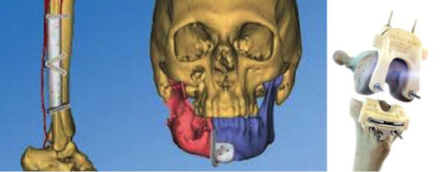 A model of patient-specific craniomaxillofacial surgical guides and knee resection guides made by Johnson & Johnson subsidiary DePuy Synthes. (Image courtesy of DePuy Synthes.)