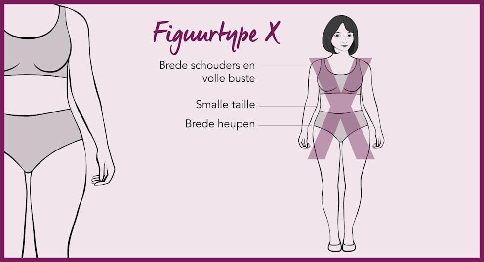 Figuurtype X