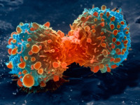 The European Medicines Agency Grants Orphan Drug Designation Status to Immunovaccine's DPX-Survivac in Ovarian Cancer
