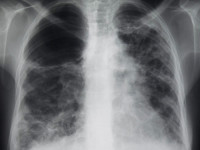 InterMune Skyrockets on Lung Disease Treatment