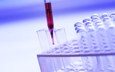 ​Pressure BioSciences (PBIOD) is Now Poised for Significant Growth: Here's Why