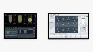 Siemens UI Screens