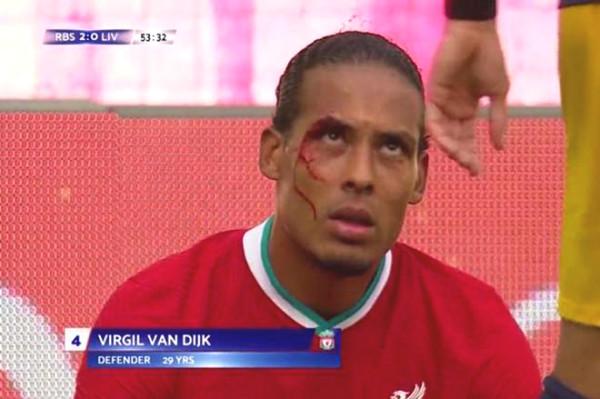 "Super defender Van Dijk got injured and bleeded profusely, Liverpool is under a ""disaster"""