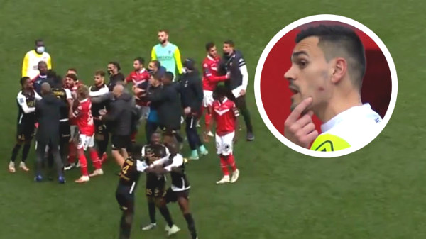 """French football star turning into """"Suarez 2.0"""", bit opponent, will face heavy punishment"""