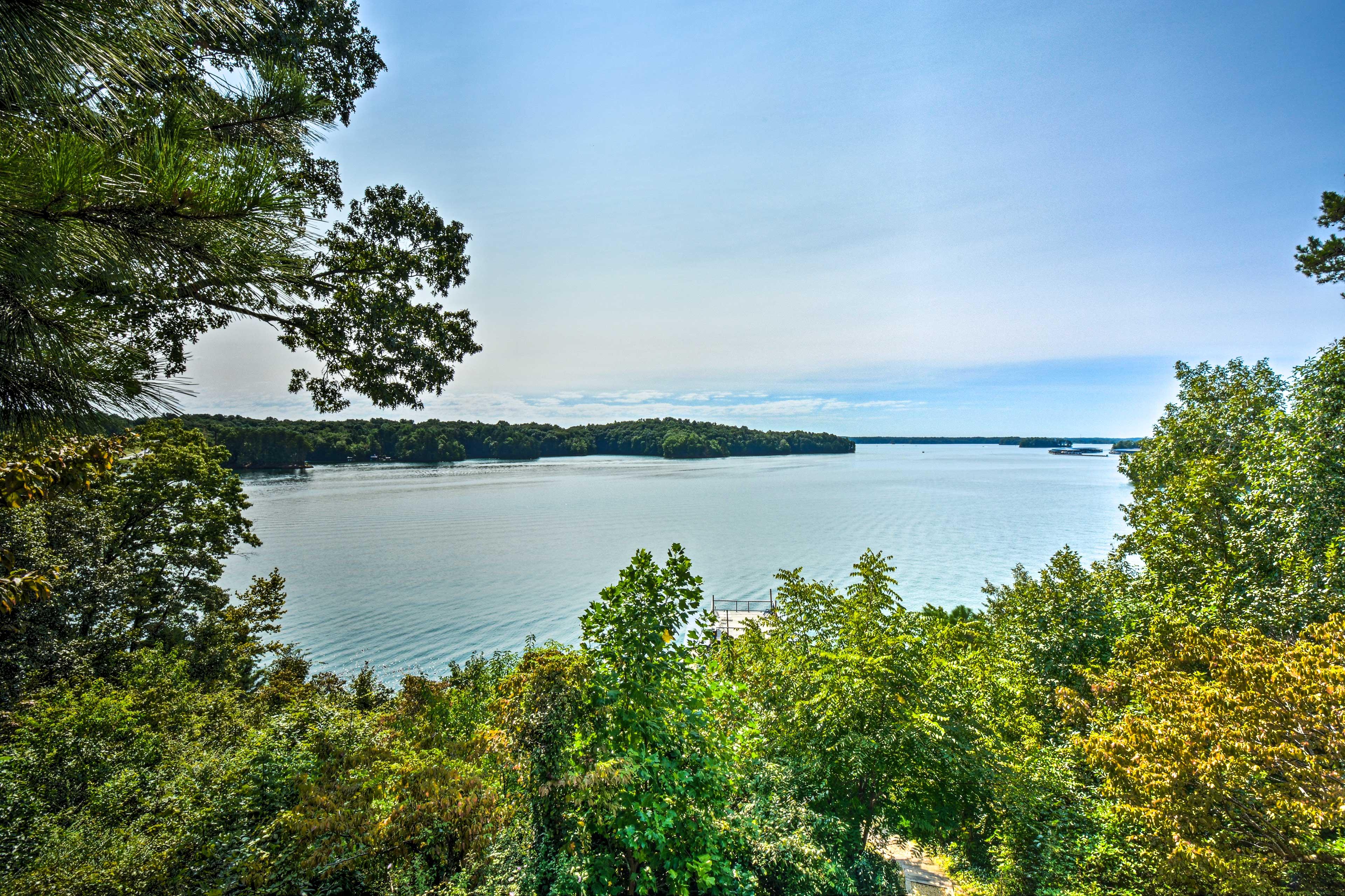 Property Exterior | Lake Views